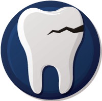 Cracked tooth repair in Kennewick Washington