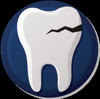 Cracked tooth repair in Kennewick Washington